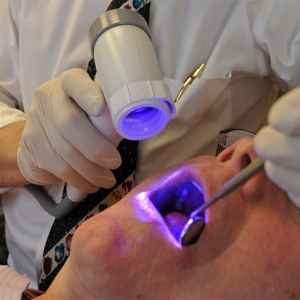 Oral Cancer Screening (Velscope)