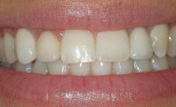dental implant after