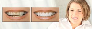 Lumineers teeth whitening